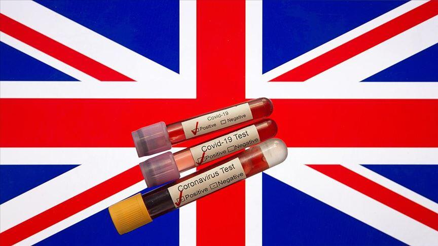 İngiltere'de son 24 saatte corona virüsten 173 ölüm